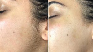 Dermaplaning, microplaning, blading, facial treatment, smooth skin, spa treatment, Before and After, Results